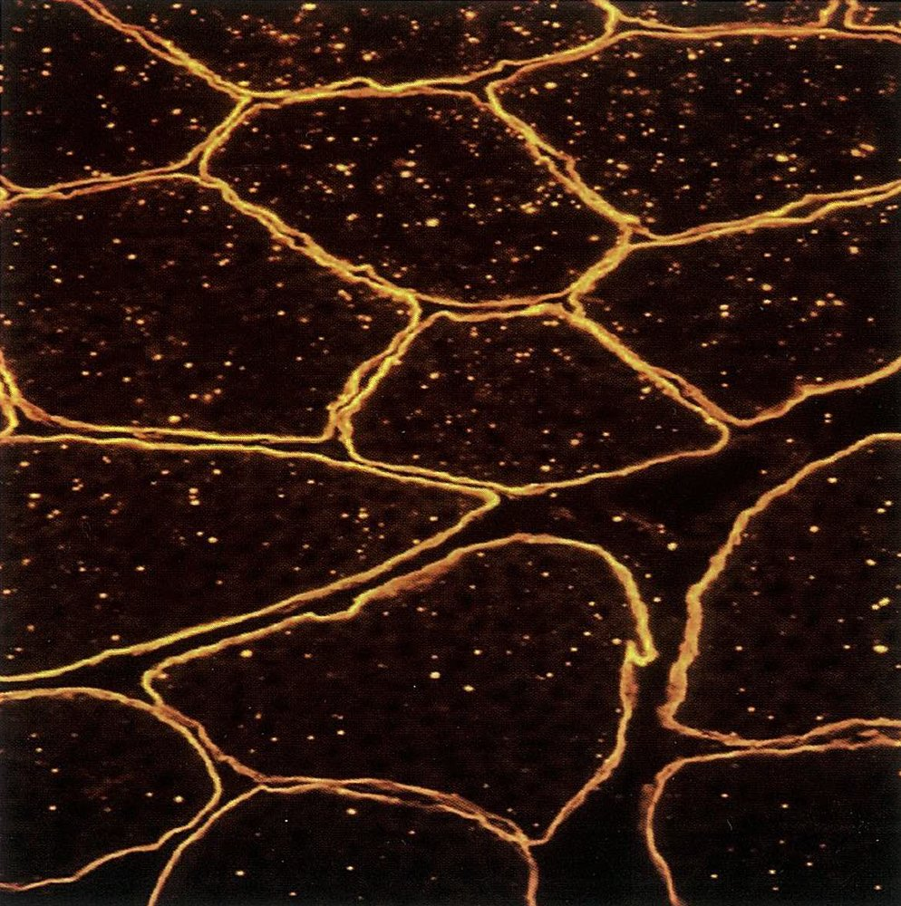 immunohistoricalogical staining of muscle tissue.jpg