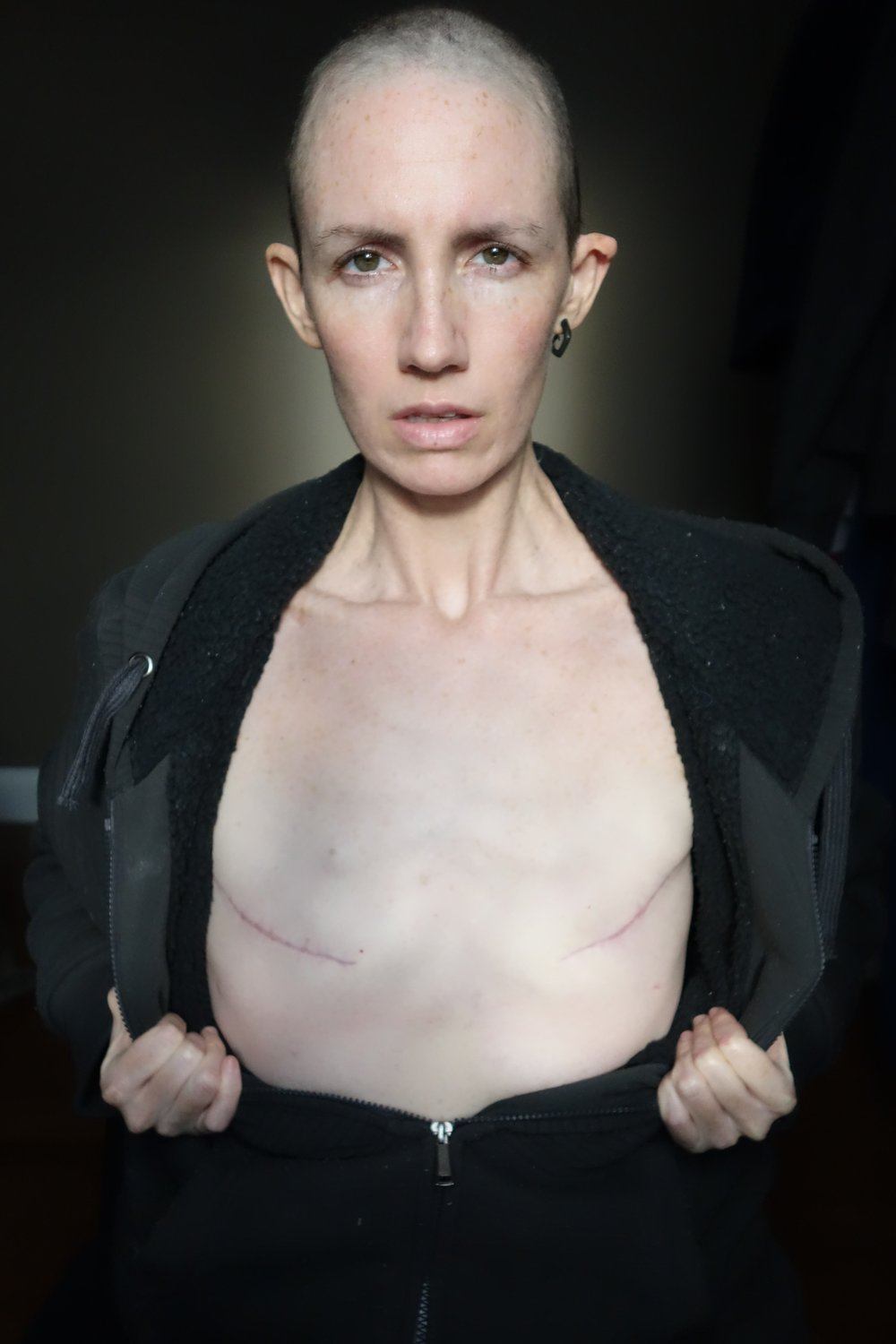 The double mastectomy was purely an aesthetic decision. I did not want reconstruction due to the increased risk of complication, nor did I want to walk around with a single breast. Symmetry was the aesthetic I desired. -