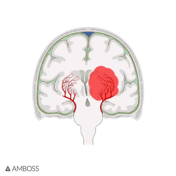 Neurology Shelf Exam