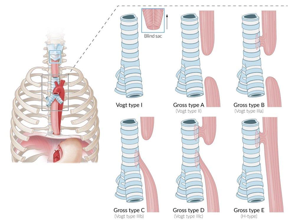 esophageal atresia pediatrics.jpg