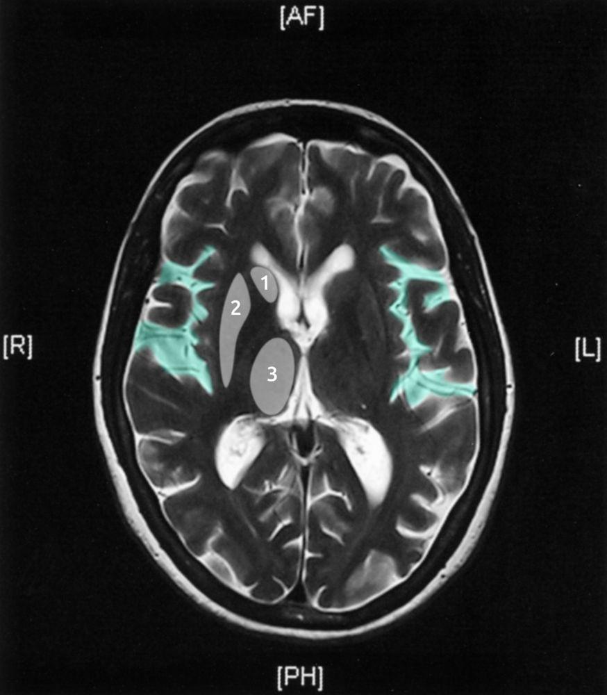 psychiatry shelf overlay.jpg