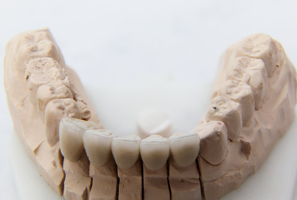 dental crown.jpg