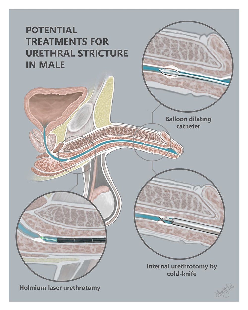 Potential Treatments for Urethral Stricture in Male This is an educational piece created for the Urology Department at the UIC hospital aimed to provide the patient with an understanding of the different types of treatment in relation to the location to the stricture.