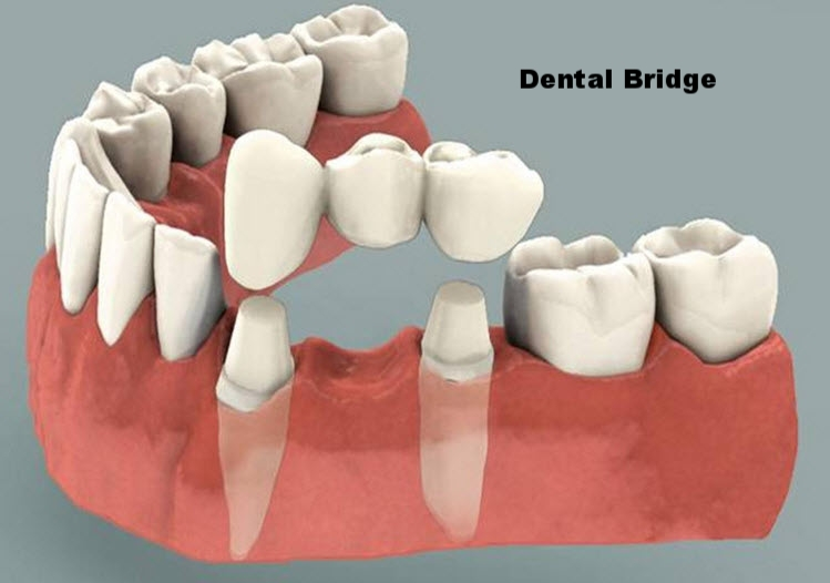 dental bridge.jpg