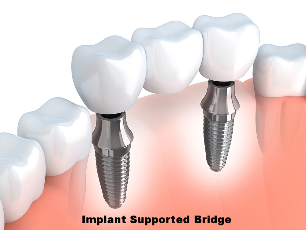 implant bridge.jpg