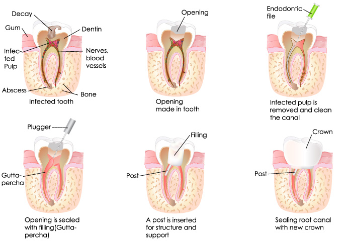 Root Canal Procedure.jpg