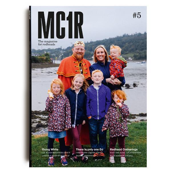 mc1r-5-buccal.jpg