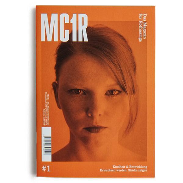 mc1r-1-buccal.jpg