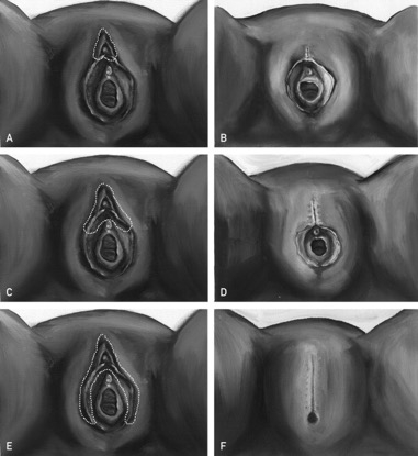 Types of FGM.jpg
