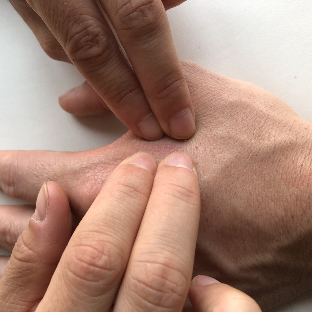 Lateral Spread - Spread your fingers along the scar on either side to create a spread between the fingers & between each hand in order to gain the depth parameter.  Pursue until a release is felt.