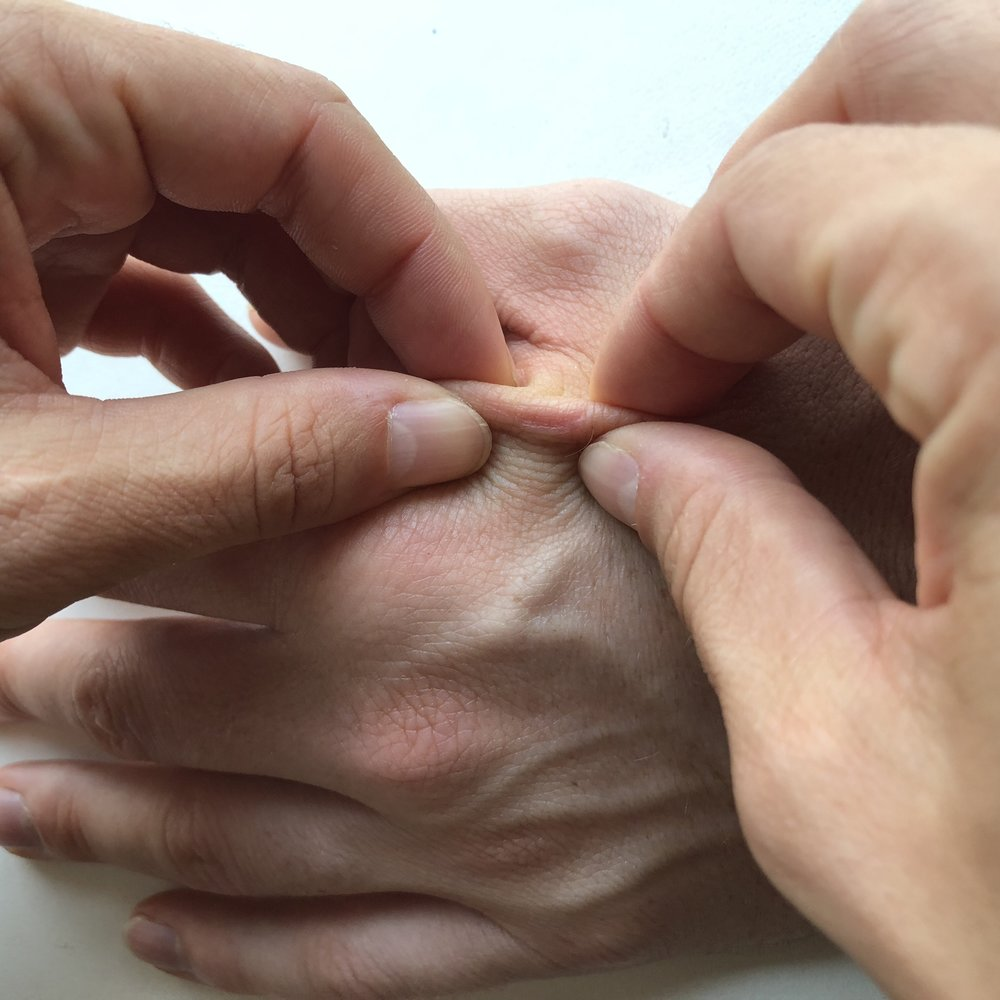 Pinch & Roll - From the lift of the tissue, roll the fingers back and forth until you feel the area most restricted and then hold until you feel a separation/release of the tissue.