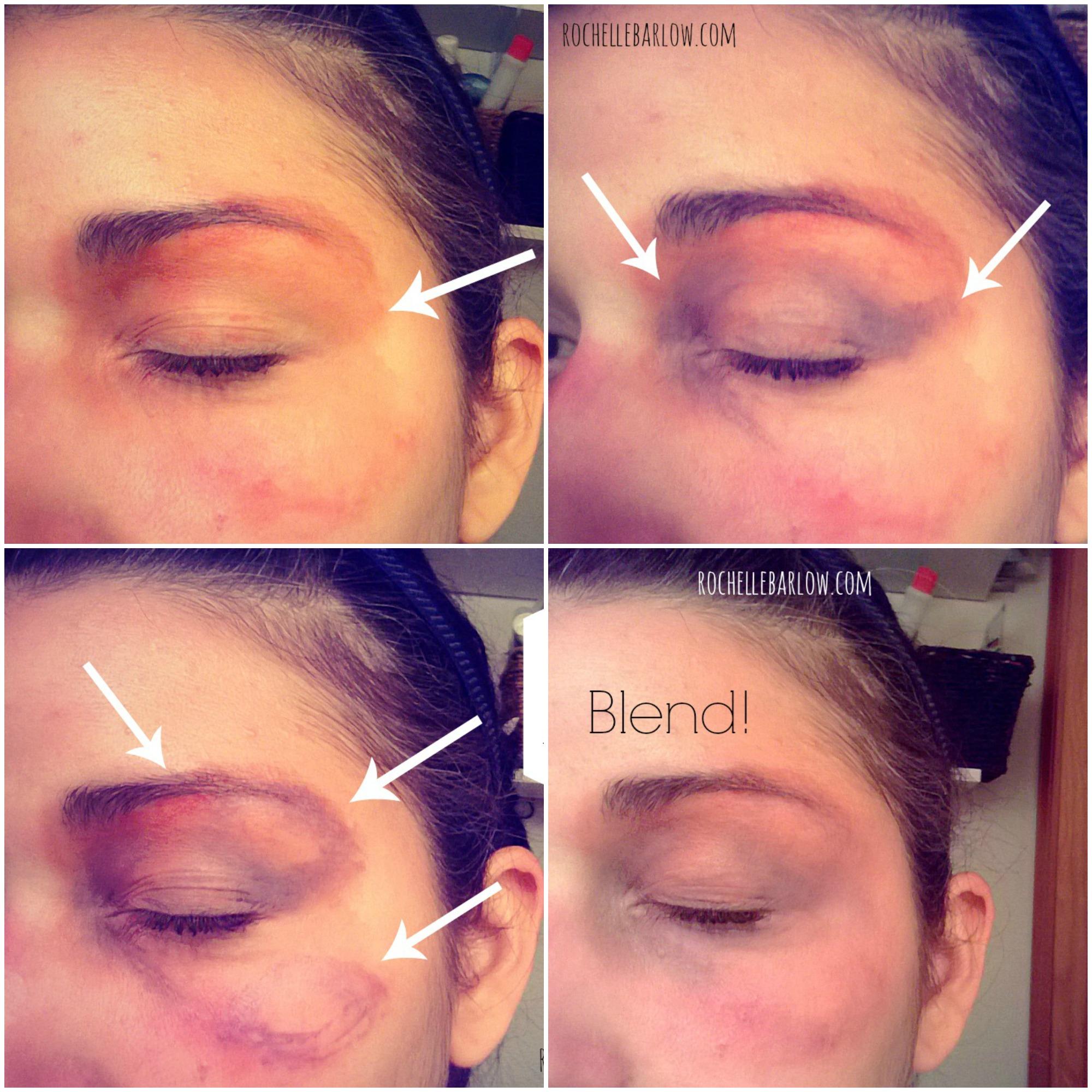 bruise 22