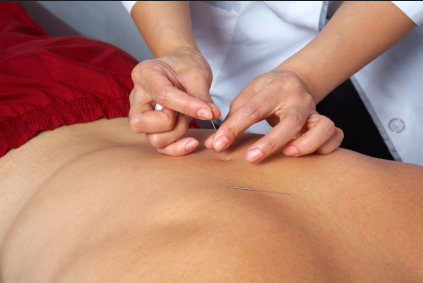 Dry-Needling-with-Erin-Pass-of-Acupuncture-clinic-of-Boulder.png
