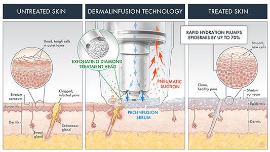 LumiereDermalinfusionTechnology.jpg