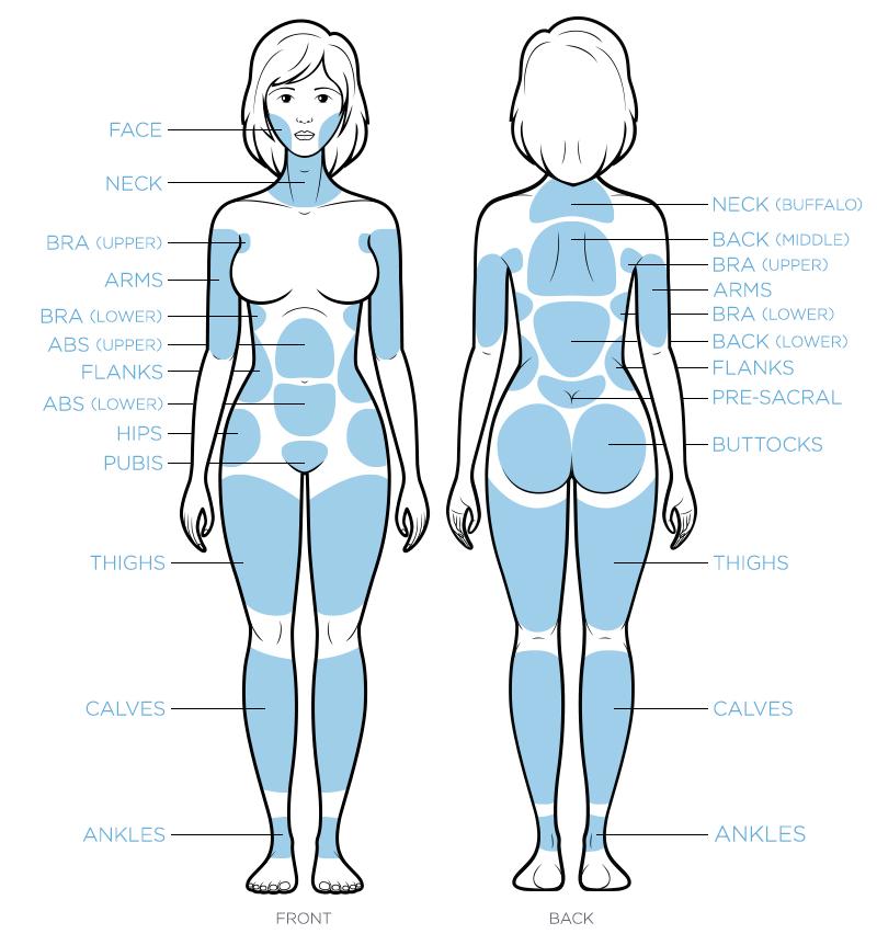 lumiere_LiposuctionTreatmentZones_Female-Orlando.jpg