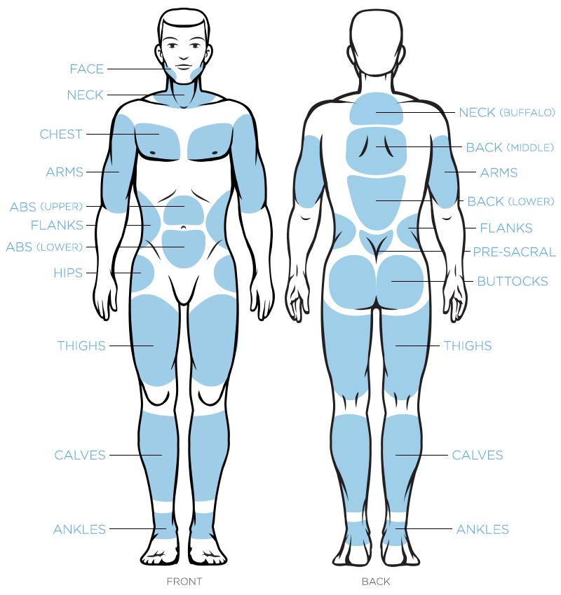 Lumiere_Liposuction_Orlando_Zones_Male.jpg