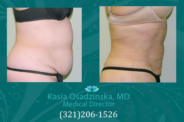 One treatment with Smartlipo. Only 2 days downtime and treatment can be done in 2 hours. #smartlipo #orlando #waterfordlakes #lipo #laserlipo