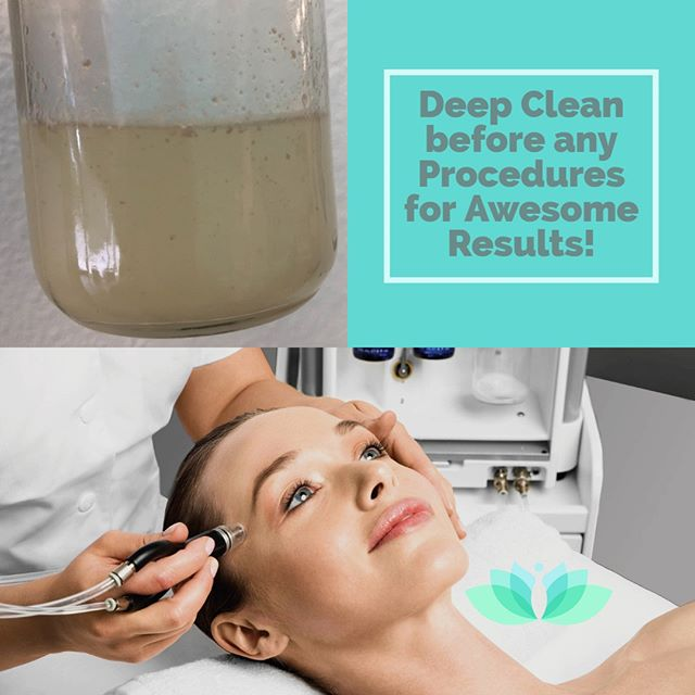 Before deep chemical peels, laser resurfacing , focused rf resurfacing, botox or fillers, deep clean with Lumiere dermalinfusion. Your skin will thank you!!! Do not trap dirt deep in your pores. Call 321.206.1526 for appointment. #dermalinfusion #resurfacing #acne #melasma #rejuvenation #hydrafacial #botox #orlando #medspa #lipo #smartlipo #liposuction