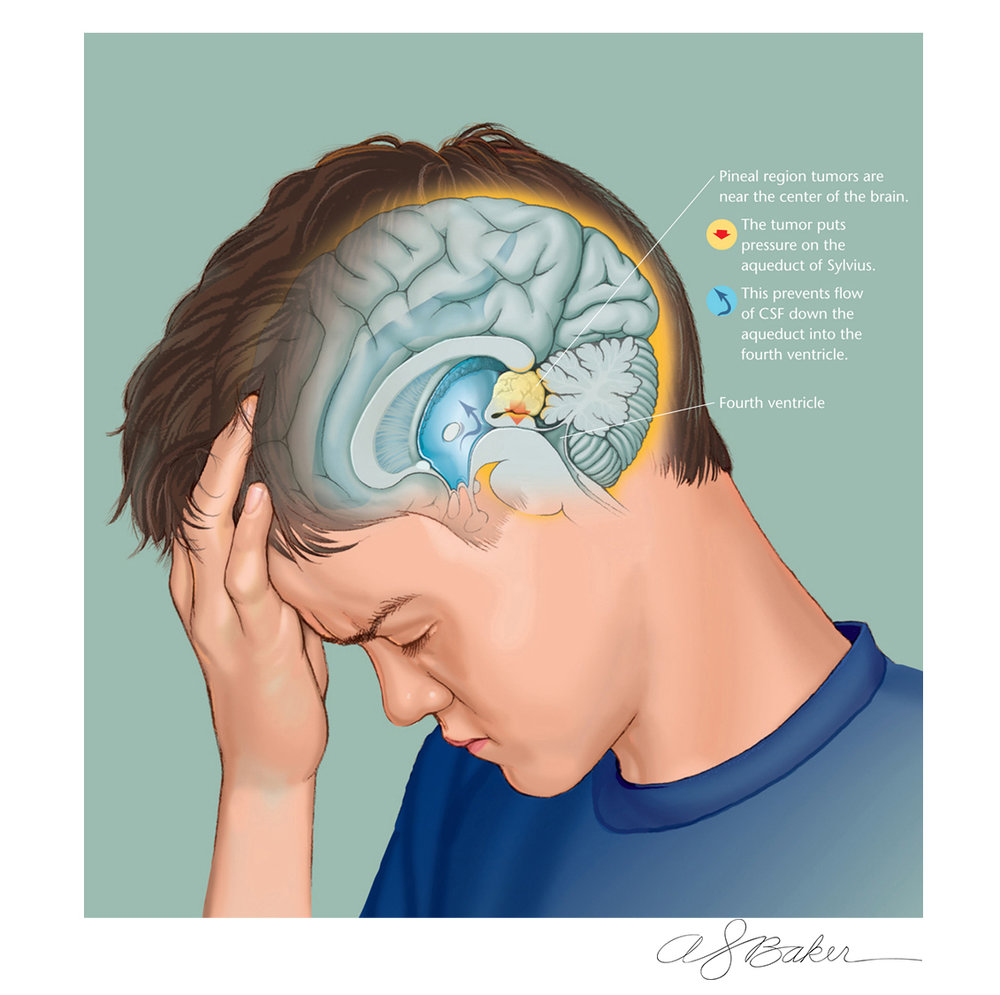 Illustration for pediatric magazine to accompany article describing how children with tumors of the pineal gland can present with headaches due to a buildup of cerebrospinal fluid.
