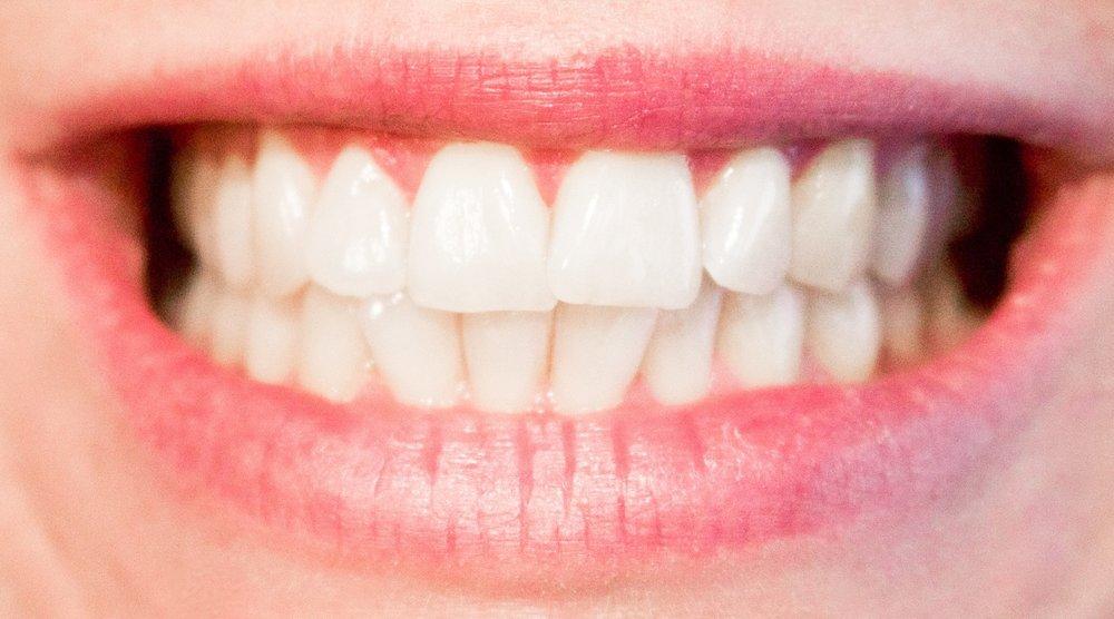 teeth-1652976_1920.jpg