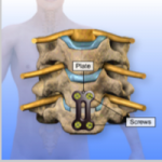 Cervical-Anterior-Cervical-Discectomy-Fusion-Instrumented4-150x150.png