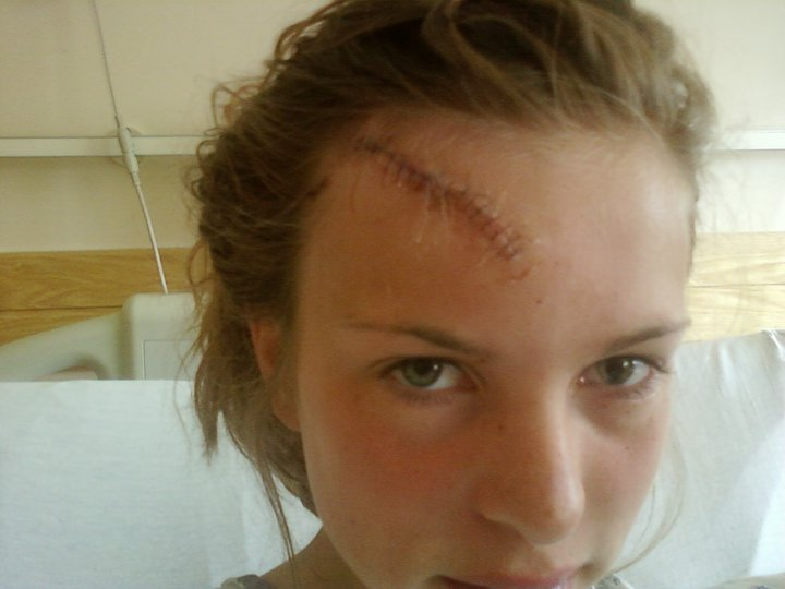 The day after my accident. Funny the thing that was most upsetting to me was that they had to cut my hair to get to the start of the gash. I felt so betrayed.