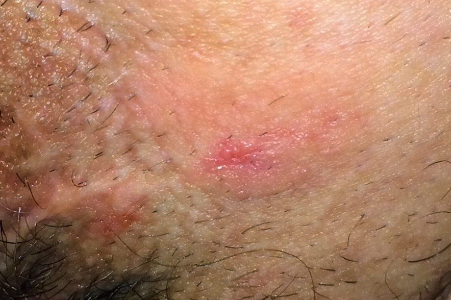 Anal soreness and rash