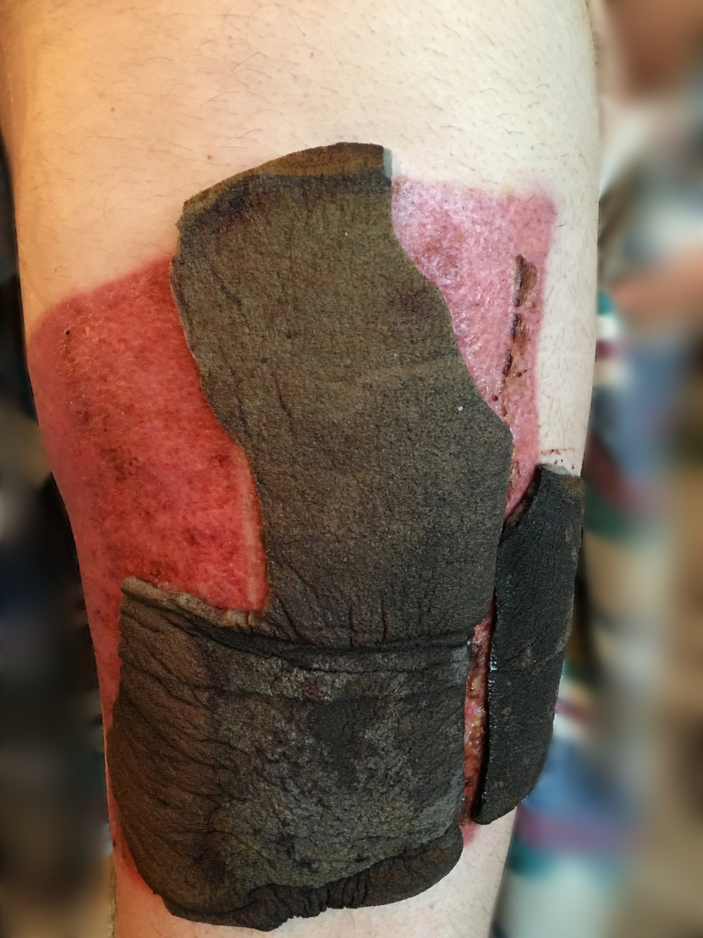 As the donor site for the split-thickness skin graft heals, the foam bandages release themselves. This photo was taken nine days after surgery.