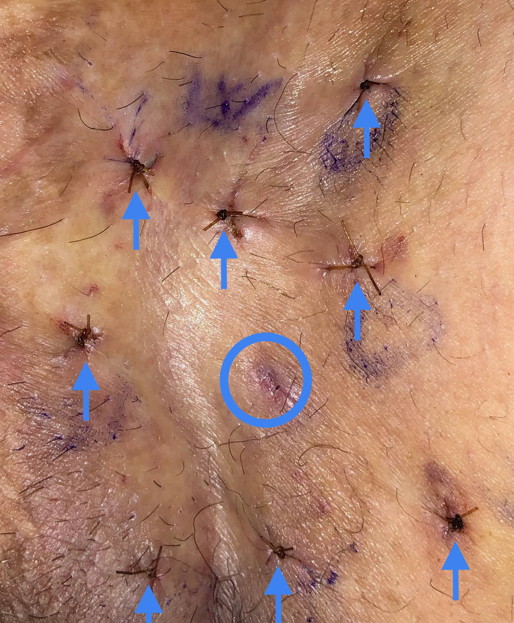 When extramammary Paget's disease (EMPD) is located in one area (as noted by the blue circle), scoutingbiopsies will often be used (as noted with the blue arrows), to help determine whether the EMPD covers a larger area. A stitch is frequently used to close each biopsy incision.