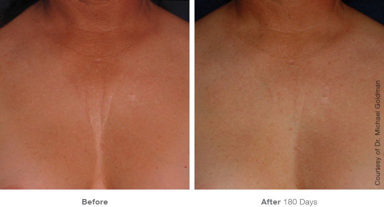 ultherapy-0007-0093ah_180day_1tx_chest_gallery.jpg