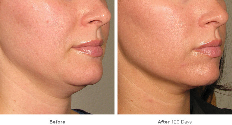 before_after_ultherapy_results_under-chin18.jpg
