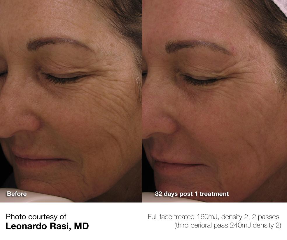 Perlmutt-Gesichtsbehandlung — 8
