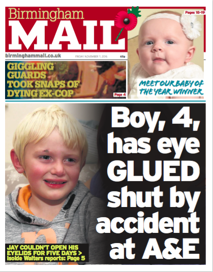 https://www.birminghammail.co.uk/news/midlands-news/horror-little-boy-eye-glued-12158916