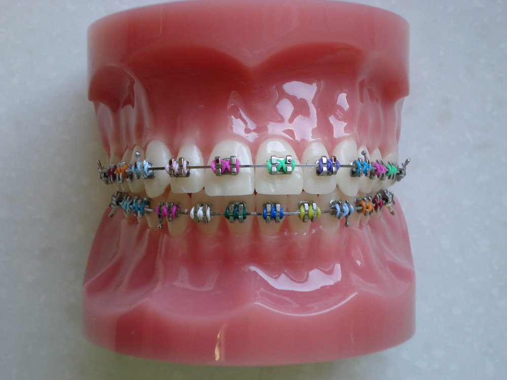 metal braces and coloured elastics.jpg