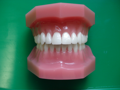 Lingual Hidden Braces