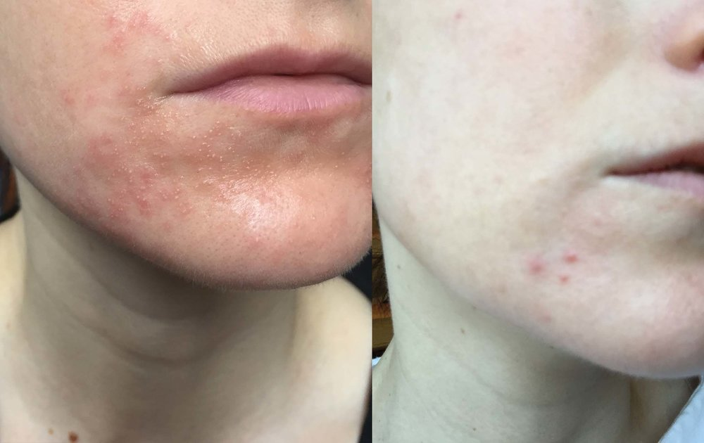 My Chin Area and Perioral Dermatitis: Left - When it was REALLY Bad Right - a Flare Up