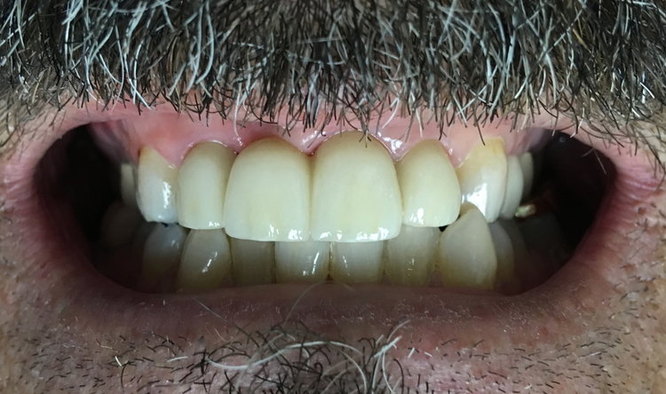 Dental bridge dentists.