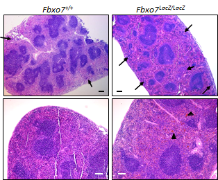 H&E staining of spleen sections from mice deficient in expression of Fbxo7.