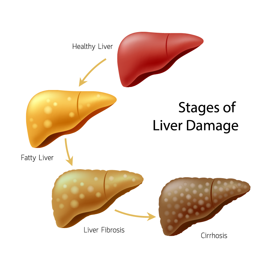 fatty liver back to natural health