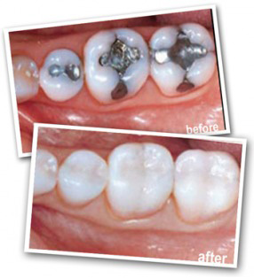 white-fillings-1.jpg