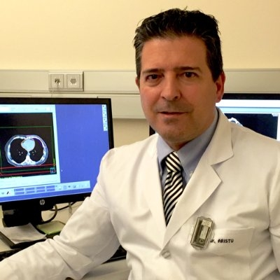 JAVIER ARISTU, MD PHD Oncologist, Clinical Universidad Universidad de Navarra gastrointestinal cancer