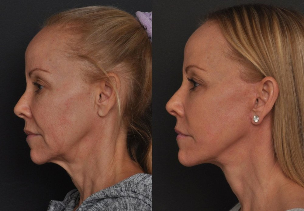 Facelift fort collins for women.jpg