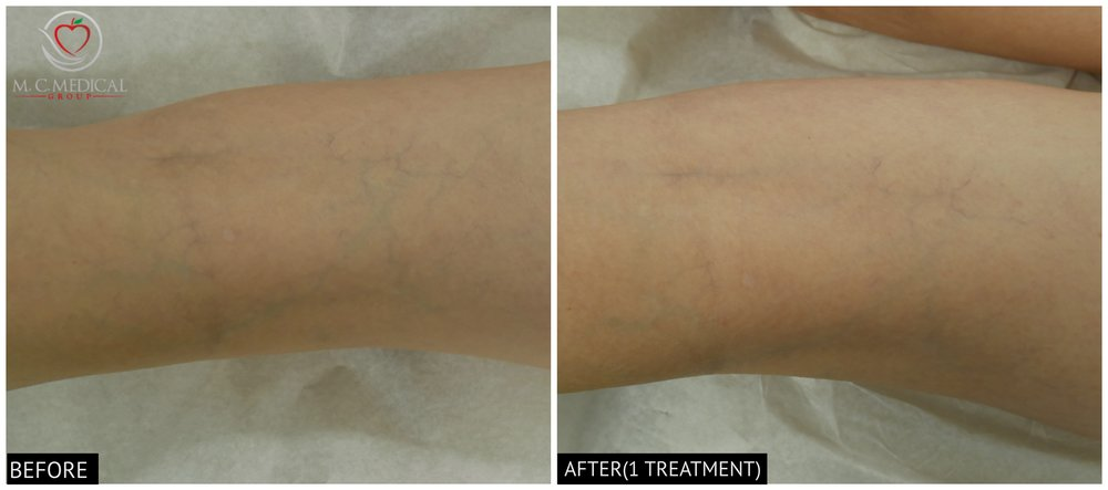before-after-1-treatment.jpg