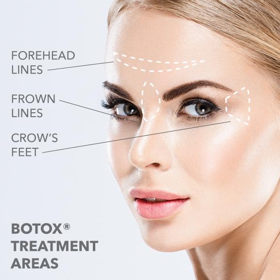 botox-02.jpg