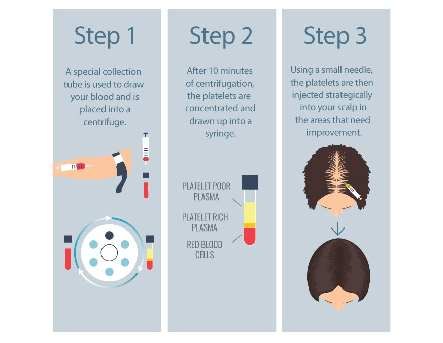 3 step process.jpg
