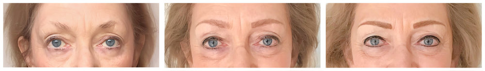 From left: before procedure, 6 weeks HEALED post-procedure, and 12 weeks final procedure