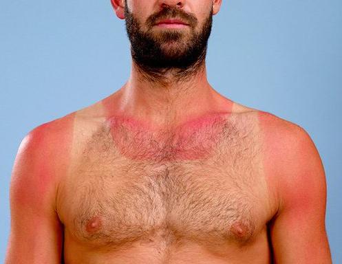 sunburn.fw.png