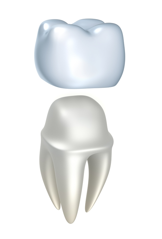 Crowns If you are missing a large portion of a tooth due to a break or decay, a core and crown may be necessary to rebuild and cover the tooth to hold the remaining tooth structure together.  This process will consist of a single appointment.  We will buildup the broken/decayed tooth and fabricate a crown in-office using our CEREC CAD/CAM machine and in-office porcelain milling unit.  No more 2 appointment crowns and messing with temporary crowns.