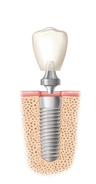 Implants   Dental implants are a great option to replace missing teeth.  An implant screw is placed in the jawbone and then is left for at least 3-6 months to allow the bone to fuse around the implant.  Then an implant crown can be made to attach to the implant.  The entire process is relatively painless and may result only in some temporary swelling immediately after the first procedure