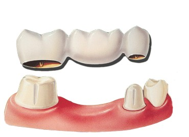 Bridges   Another option to replace a missing tooth would be a fixed bridge.  The procedure would involve shaping the teeth on each side of the missing tooth space for crowns, and then our dental lab would fabricate an additional porcelain tooth to fill in the space.